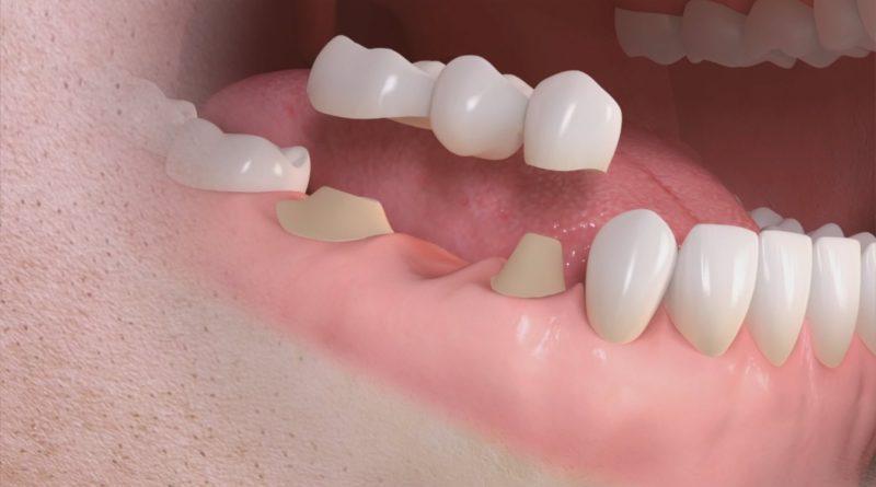 Ponte dentale mobile o fisso, quali le differenze